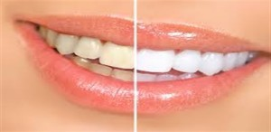white teeth upcharnuskhe