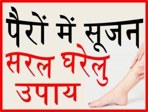 पैरों में सूजन होने के कारण और सरल घरेलु उपाय upcharnuskhe
