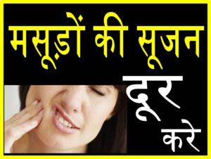 मसूड़ों में सूजन दूर करने के अचूक तथा कारगर उपाय upcharnuskhe