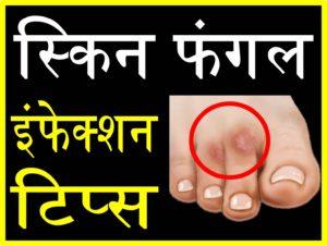 स्किन फंगल इंफेक्शन से बचने के घरेलू उपाय upcharnuskhe