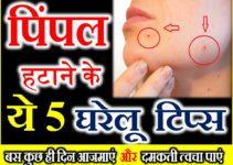 चेहरे से पिंपल हटाने के बेहतरीन घरेलु नुस्खे Home Remedies for Pimples