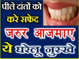 जानिए पीले दांतों को सफेद करने के घरेलू नुस्खे Yellow Teeth Home Remedies