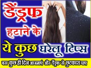 बालों से रूसी हटाने के आसान घरेलू उपाय Easy Home Remedies to Get Rid of Dandruff