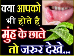 मुंह के छाले दूर करने के लिए अपनाएं ये 5 घरेलू उपाय Best Home Remedies for Mouth Ulcers