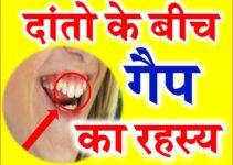 दांतो के बीच के गैप का रहस्य Gap between Front Teeth Face Reading